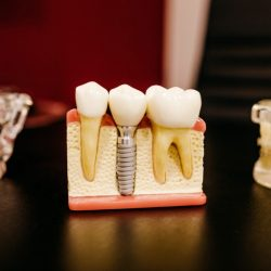 Recruitment Tips for Dental Practices
